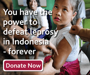 You have the power to defeat leprosy in Indonesia